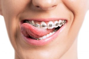 Things to know about orthodontic spacers