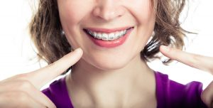 Dental braces for perfect teeth